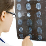 WHAT YOU NEED TO CONSIDER WHEN FILING BRAIN INJURY CLAIM